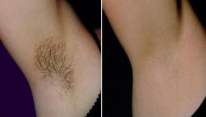 plaukusalinimas
